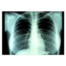 Lungs, X-ray - Invitations