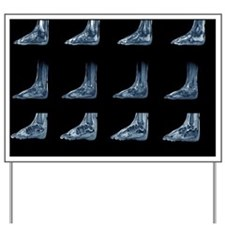 Charcot arthropathy, MRI scans - Yard Sign