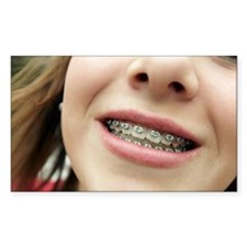 Dental braces - Decal