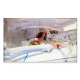 Premature baby - Decal