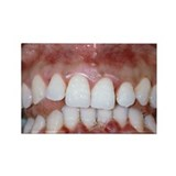 Gingivitis - Rectangle Magnet