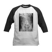 Ulcerative colitis, X-ray - Tee