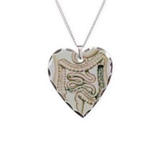 and ulcerative colitis - Necklace