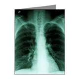 X-ray of human chest Note Cards (Pk of 20)