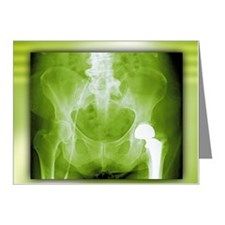 Total hip replacement Note Cards (Pk of 20)