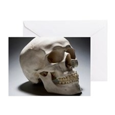A human skull Greeting Cards (Pk of 20)