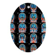 MRI scan of brain Ornament (Oval)