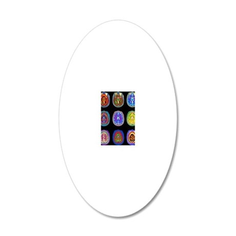 Nine MRI scans of woman's br 20x12 Oval Wall Decal
