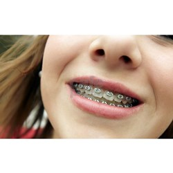 invisalign braces for adults and teens