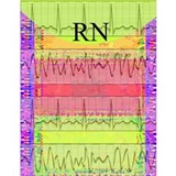 RN iphone cardiac funk Water Bottle