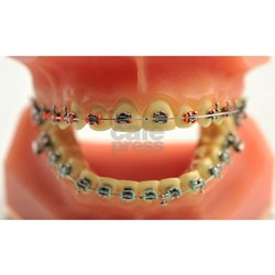 ceramic braces for professional smile correction