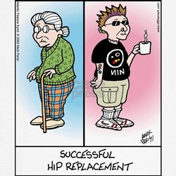 Hip Replacement T